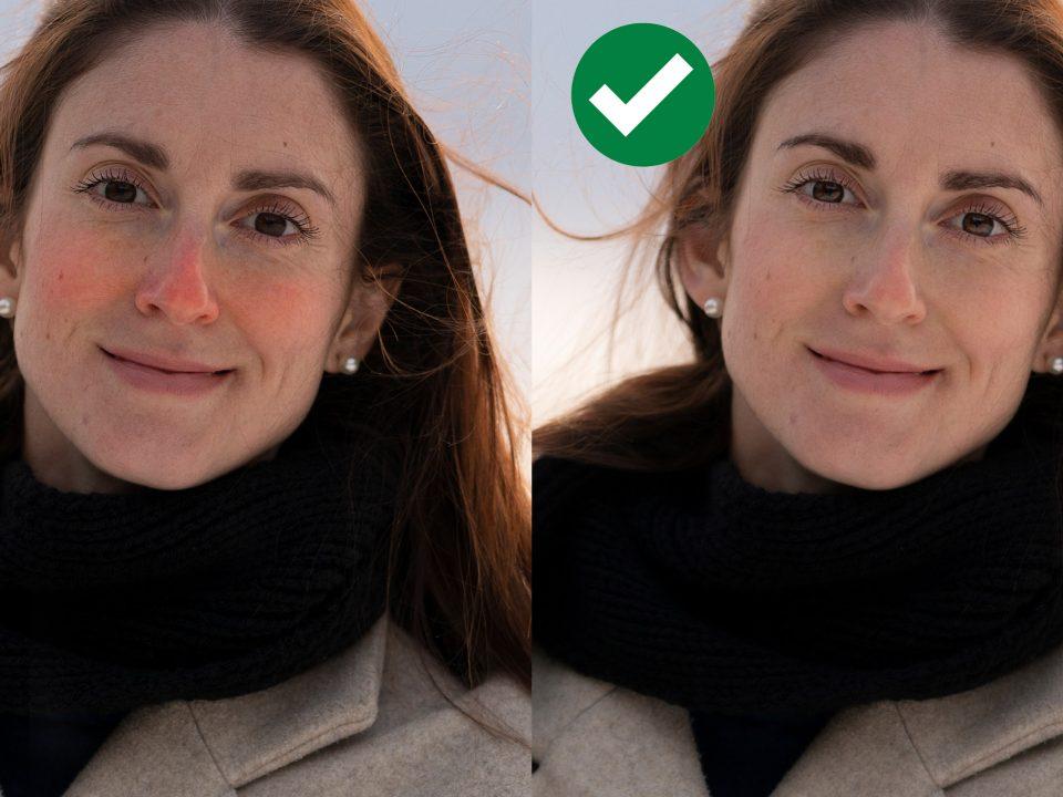 Débarrasser nez joues rouges